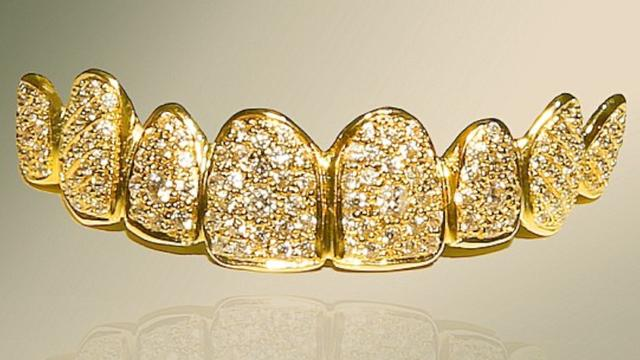World's Most Expensive Dentures