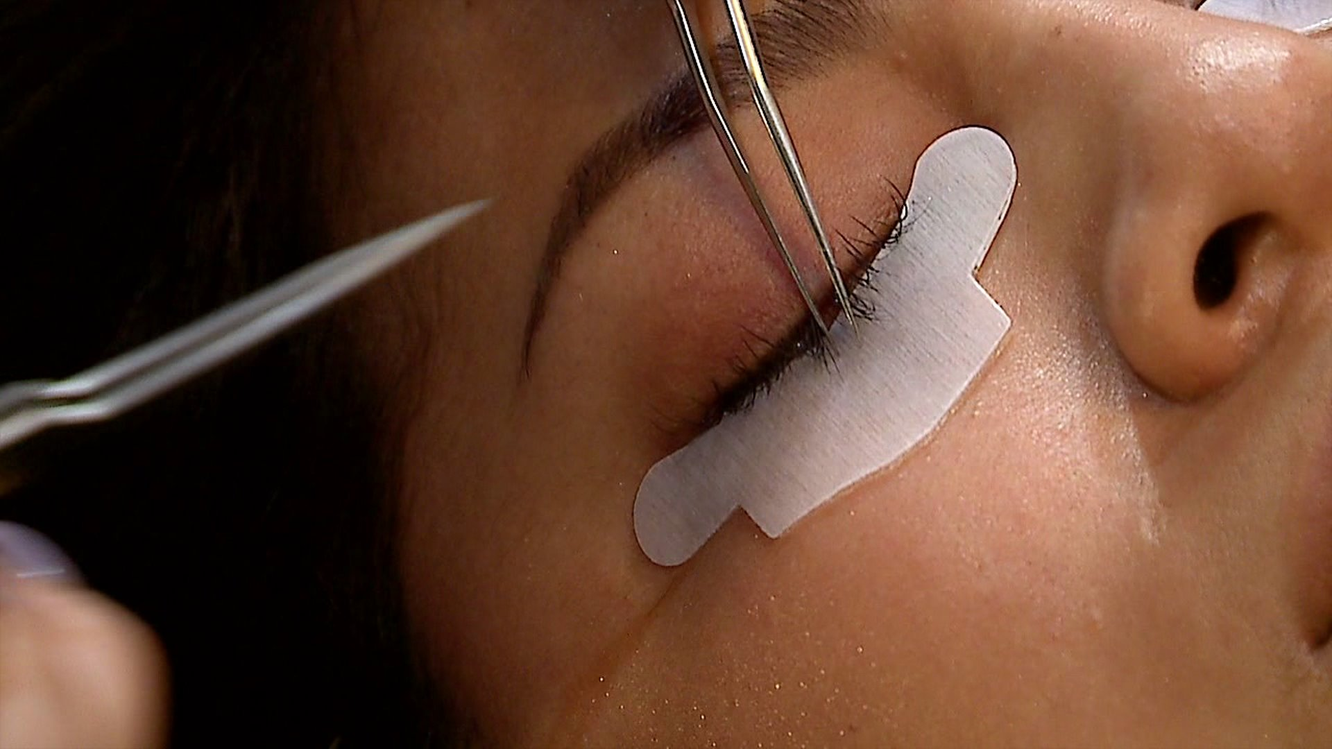 Eyelash Extensions Lead to Cosmetic Nightmare