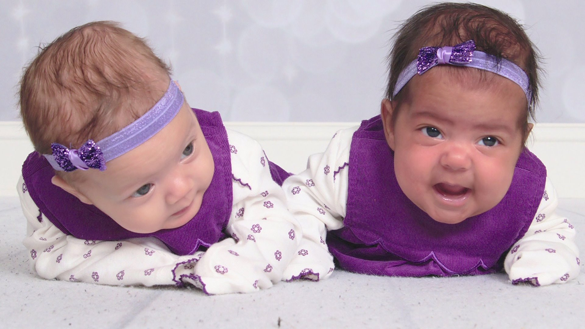 Twins Born With Different Skin Tones