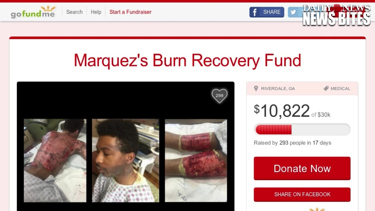 Gay Couple Severely Burned After Mom's Boyfriend Throws Boiling Water on Th