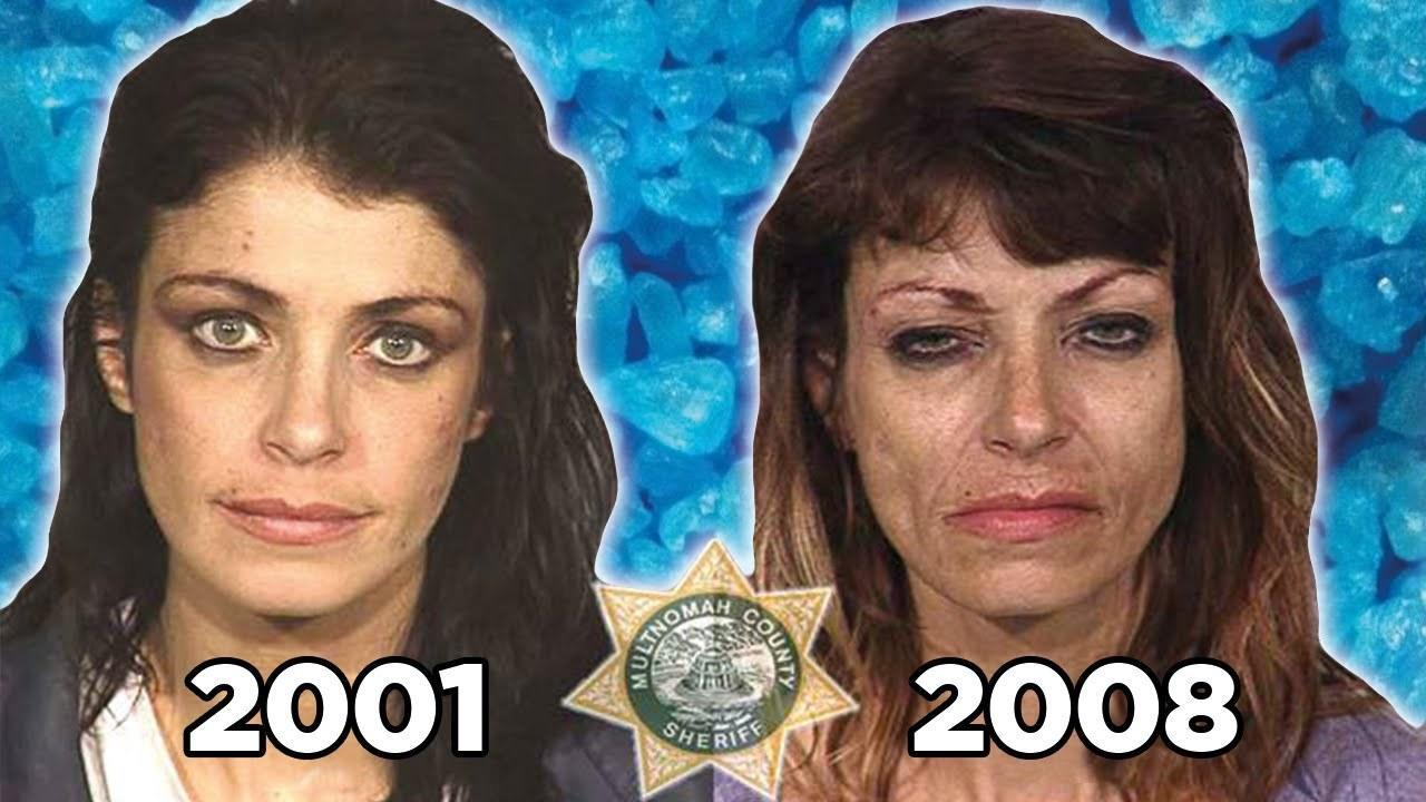 These before and after photos show the real effects of heroin use