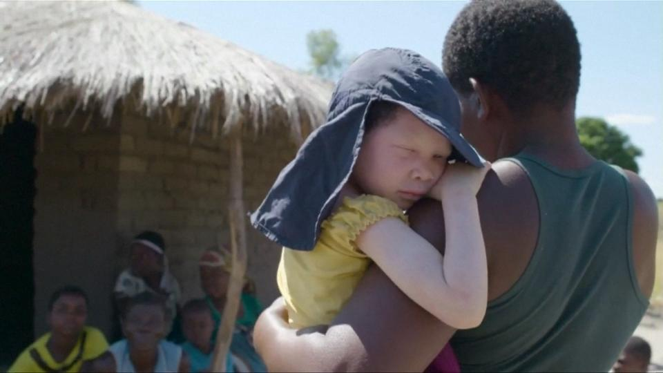 Attacks on Malawi's Albinos Surge