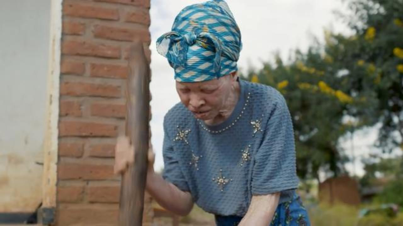 People With Albinism Being Hunted And Killed In Malawi For Their Body Parts