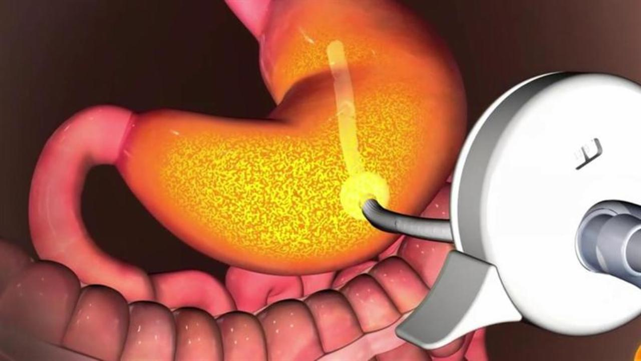 Weight loss stomach pump approved by FDA to treat obesity