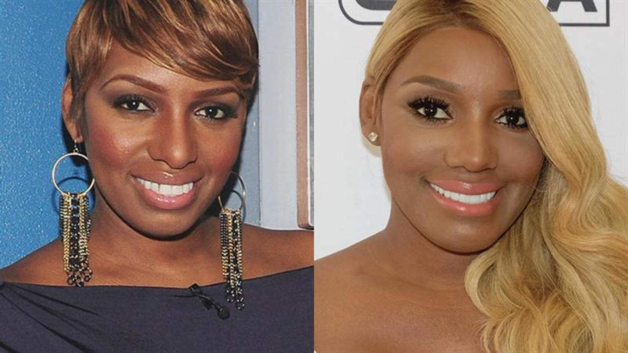 NeNe Leakes Says She Got a Nose Job Again