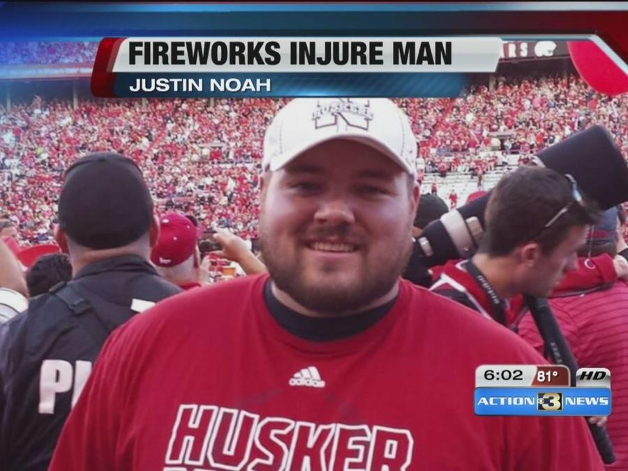Man injured in fireworks accident