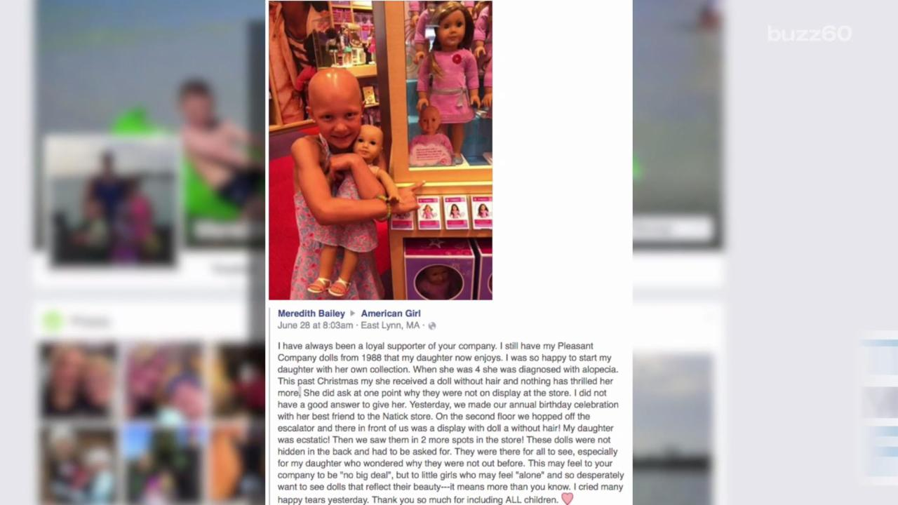 Mom Writes an Open Letter Thanking Company for Making Bald Dolls