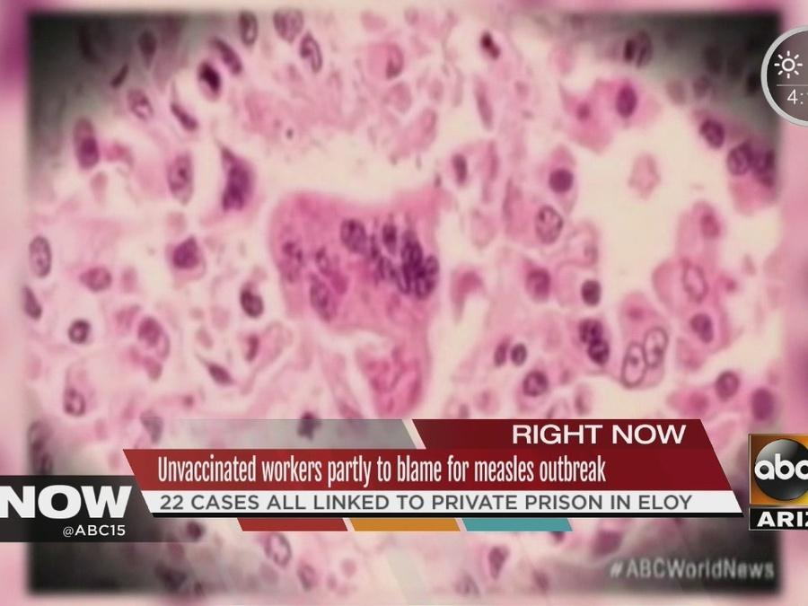 Officials: unvaccinated workers partially to blame for measles outbreak