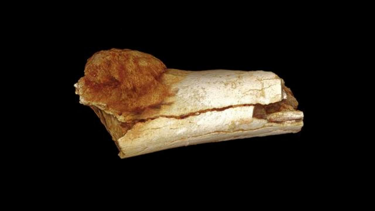 Most Ancient Case of Human Cancer Found in 1.7 Million-year-old Foot Bone