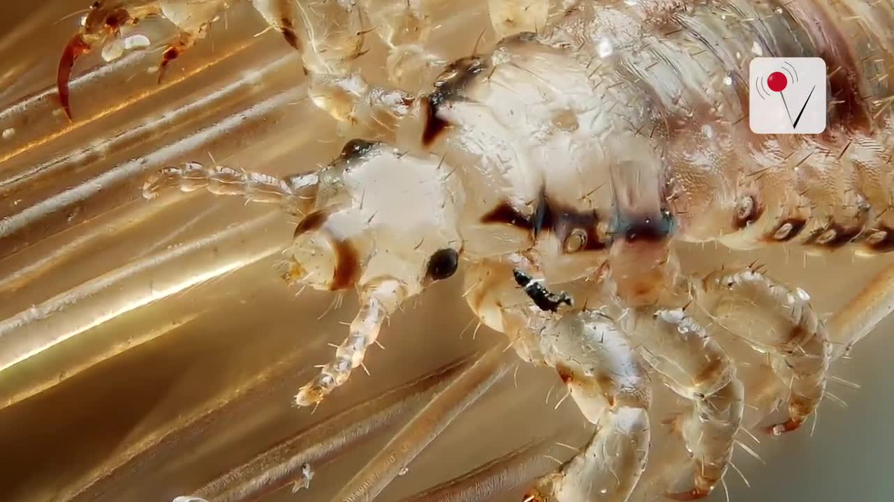 'Super Lice' Crawl Their Way Into 48 States