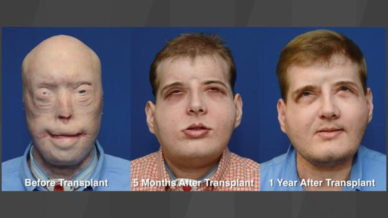 Watch Man's Incredible Transformation After Getting Most Extensive Face Transplant In History