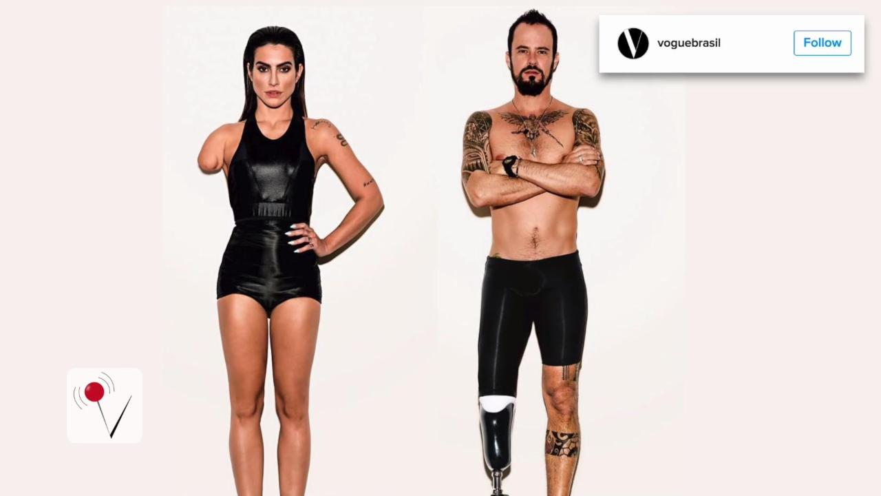 Vogue Brazil Under Fire for Photoshopping Models to Look Disabled