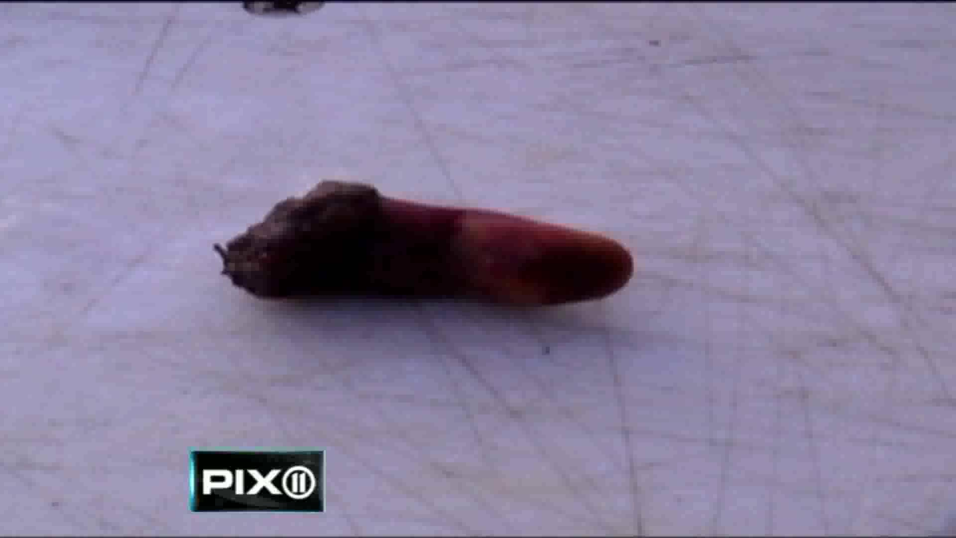 Fisherman Finds Lost Finger In Trout