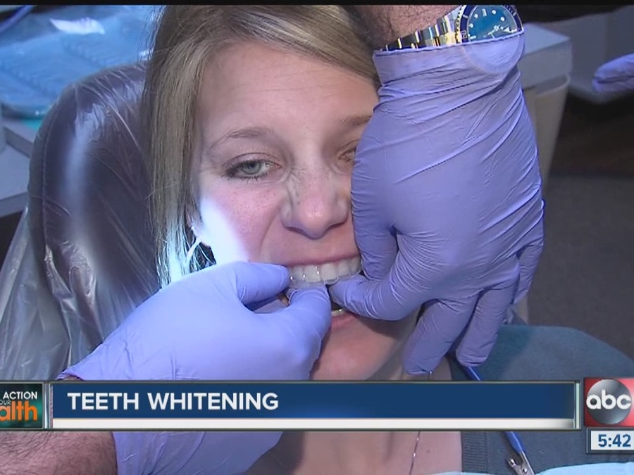 Which Teeth Whitening Products Work Best?