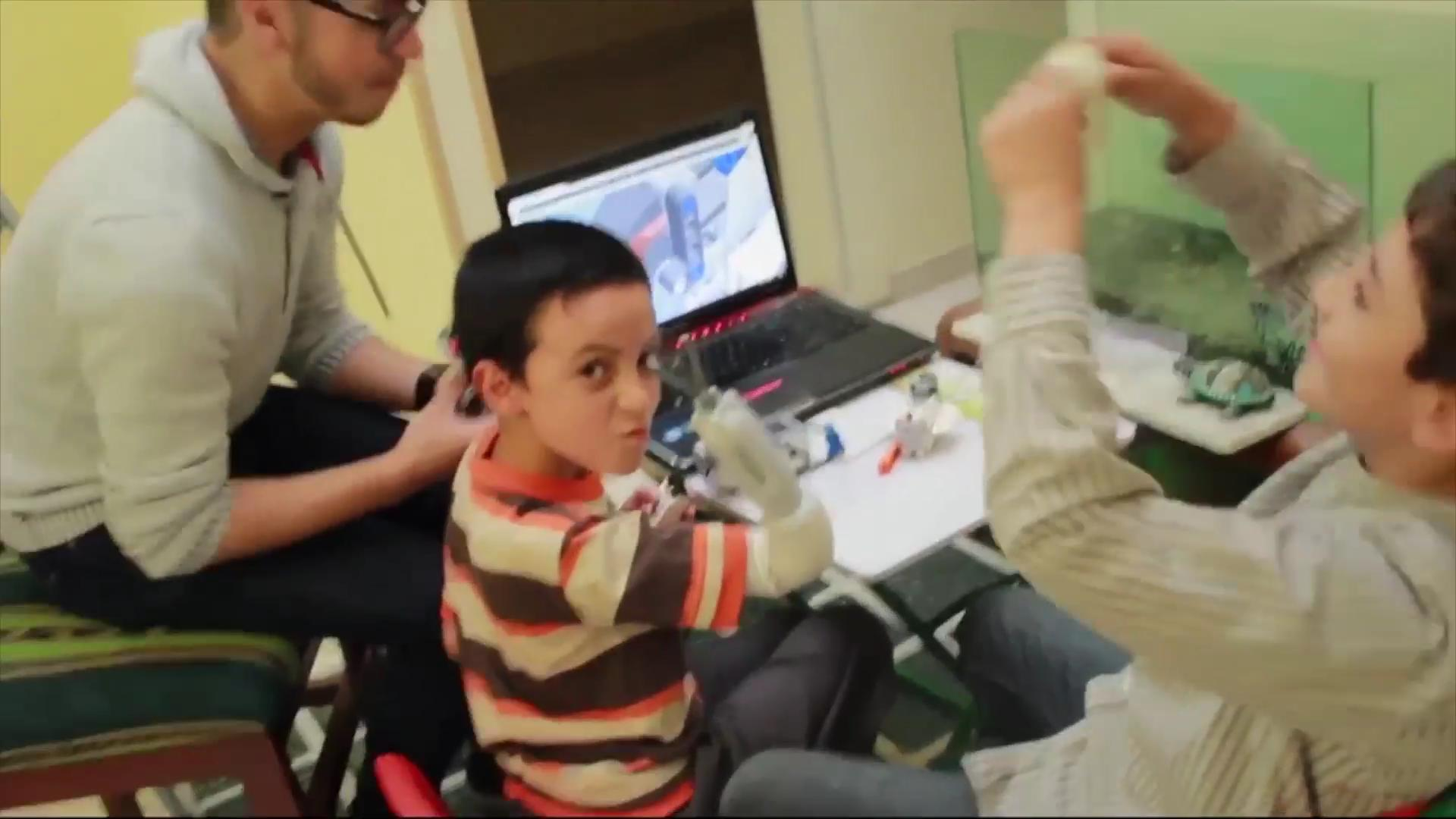 New LEGO Prosthetic Lets Kids Build Their Own Arm
