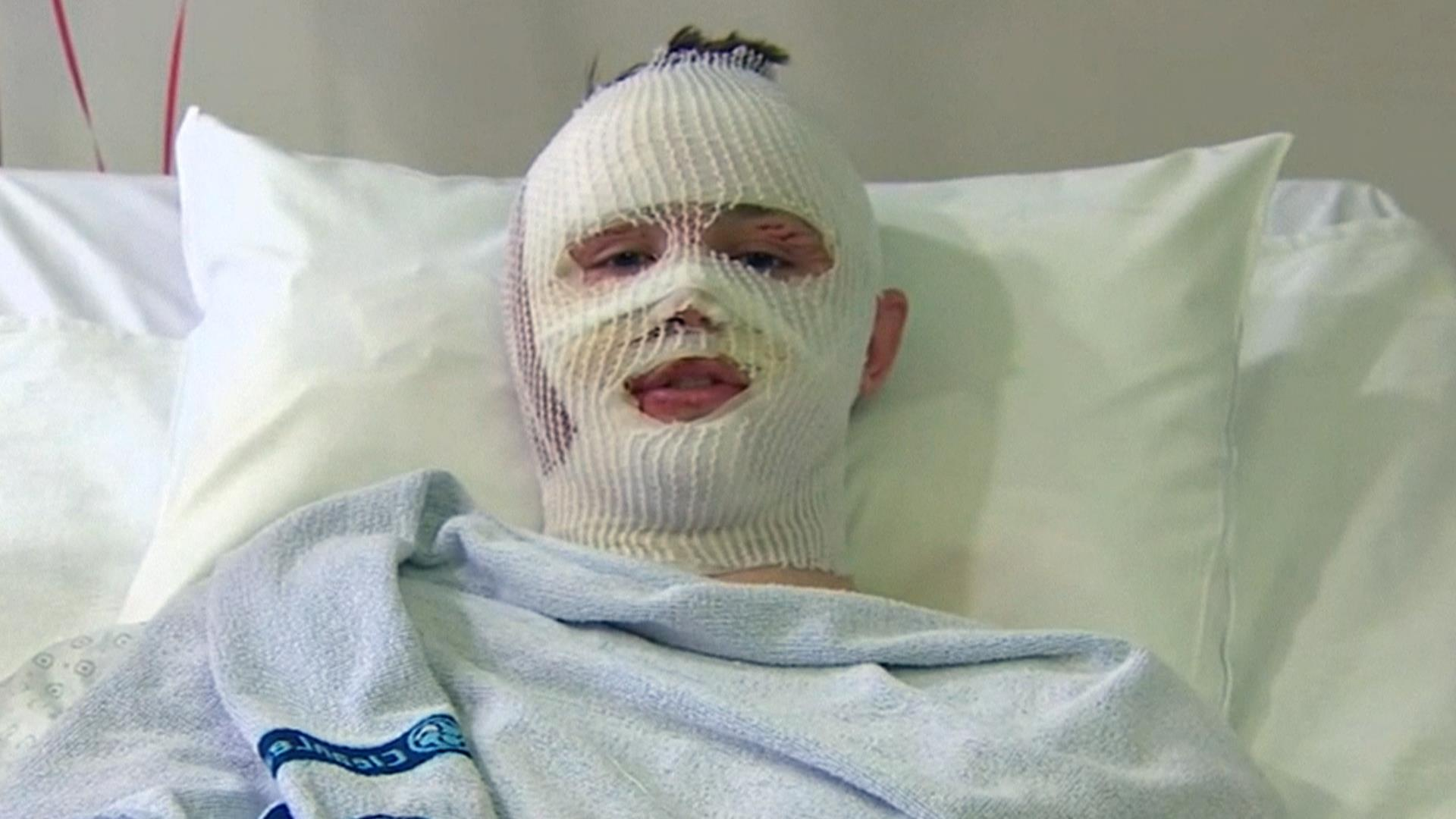 American Teen Recounts Surviving His Second Terror Attack in Brussels