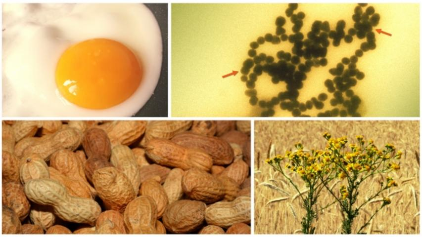 Food Allergies Could Soon Be Treated With Nanoparticles