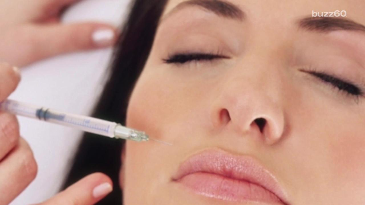 Experts Say Botox is Good For Migraines