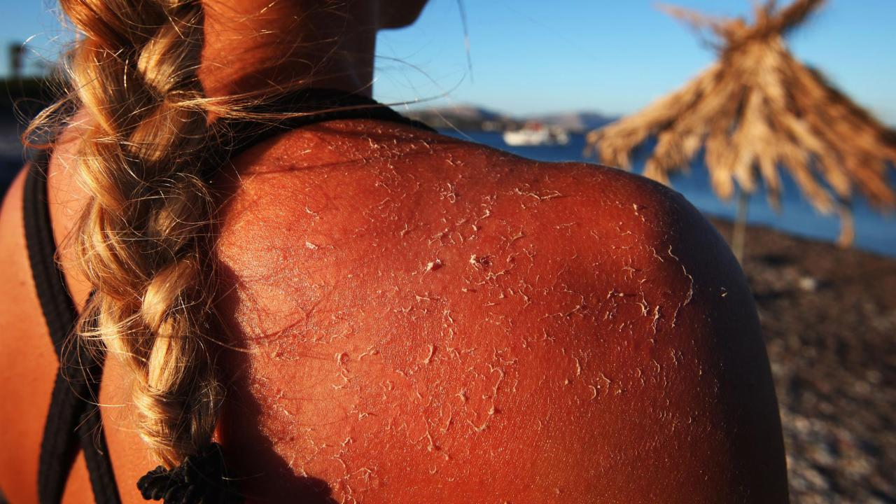 How many sunburns does it take to get skin cancer?