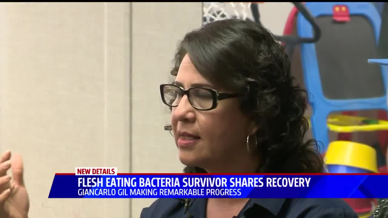 Teen Thriving After Surviving Flesh-Eating Bacteria