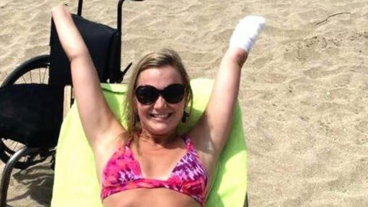 Woman Embraces Her New Existence After Losing Limbs To Flesh-Eating Bacteria