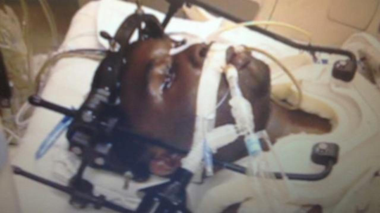 Man Convicted Of Murder After Paralyzed Victim Identified Shooter By Blinking