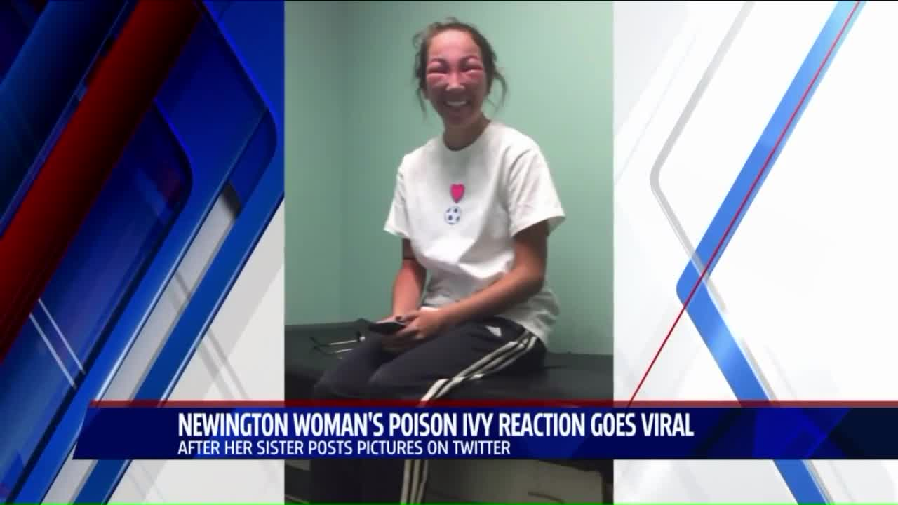 Woman's Poison Ivy Reaction Goes Viral