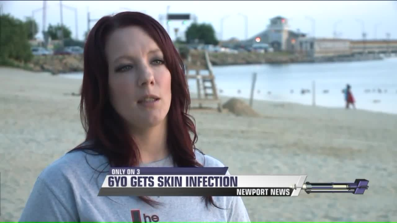 6-Year-Old Develops Painful Reaction After Swimming at Virginia Beach