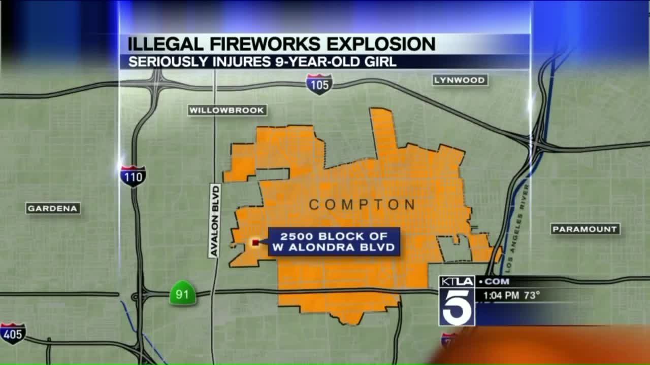 9-Year-Old Girl Loses Hand in Illegal Fireworks Explosion