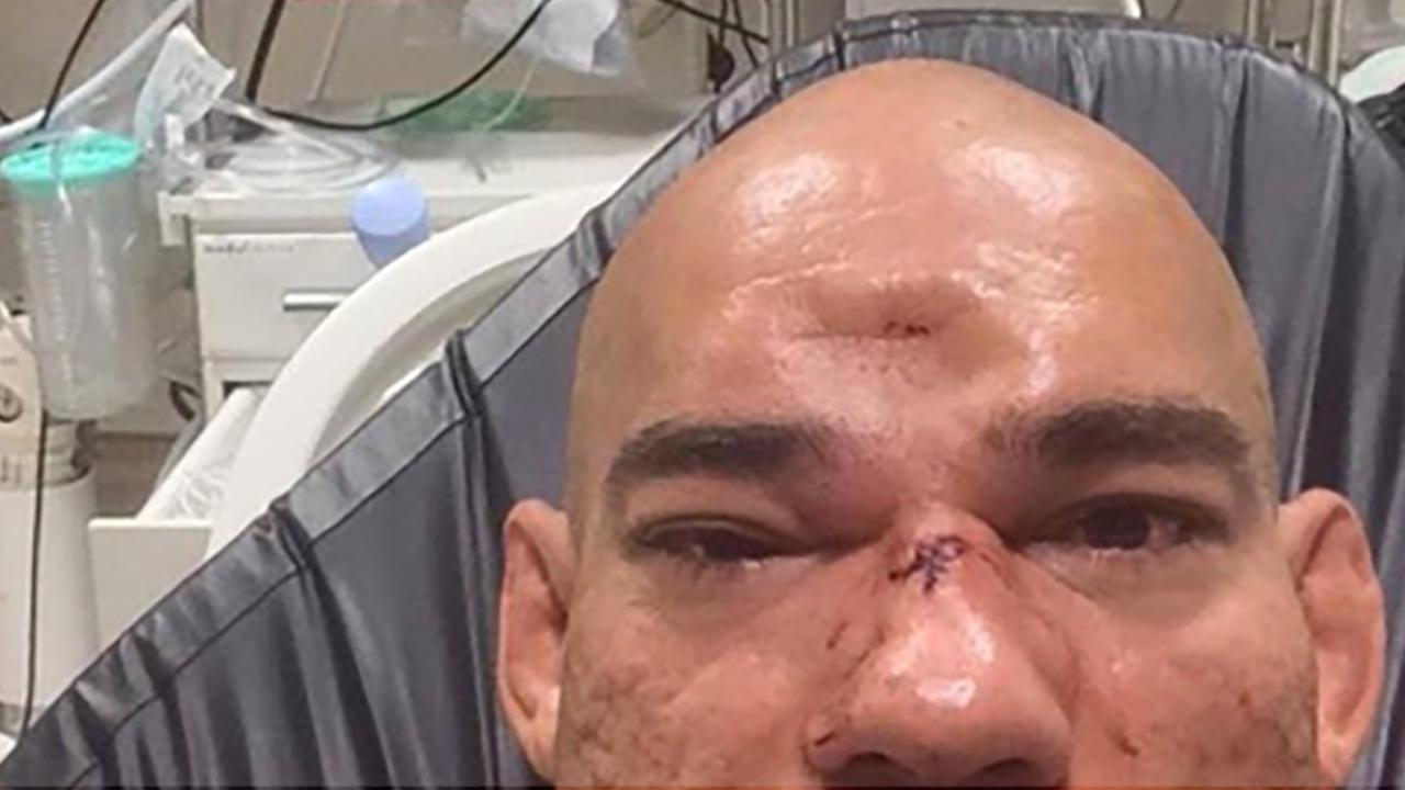 Evangelista 'Cyborg' Santos Has Gruesome Dent in His Head After Bellator Fight