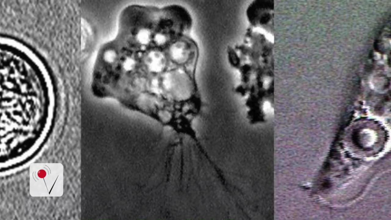 Brain-Eating Amoeba Confirmed In South Carolina