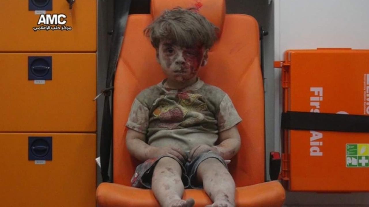 5-Year-Old Boy Is Symbol of Devastation in Aleppo
