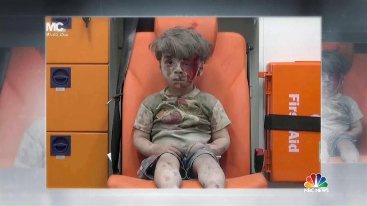 Chilling Photo of Bloodied Syrian Boy Shows Horrors of Syria