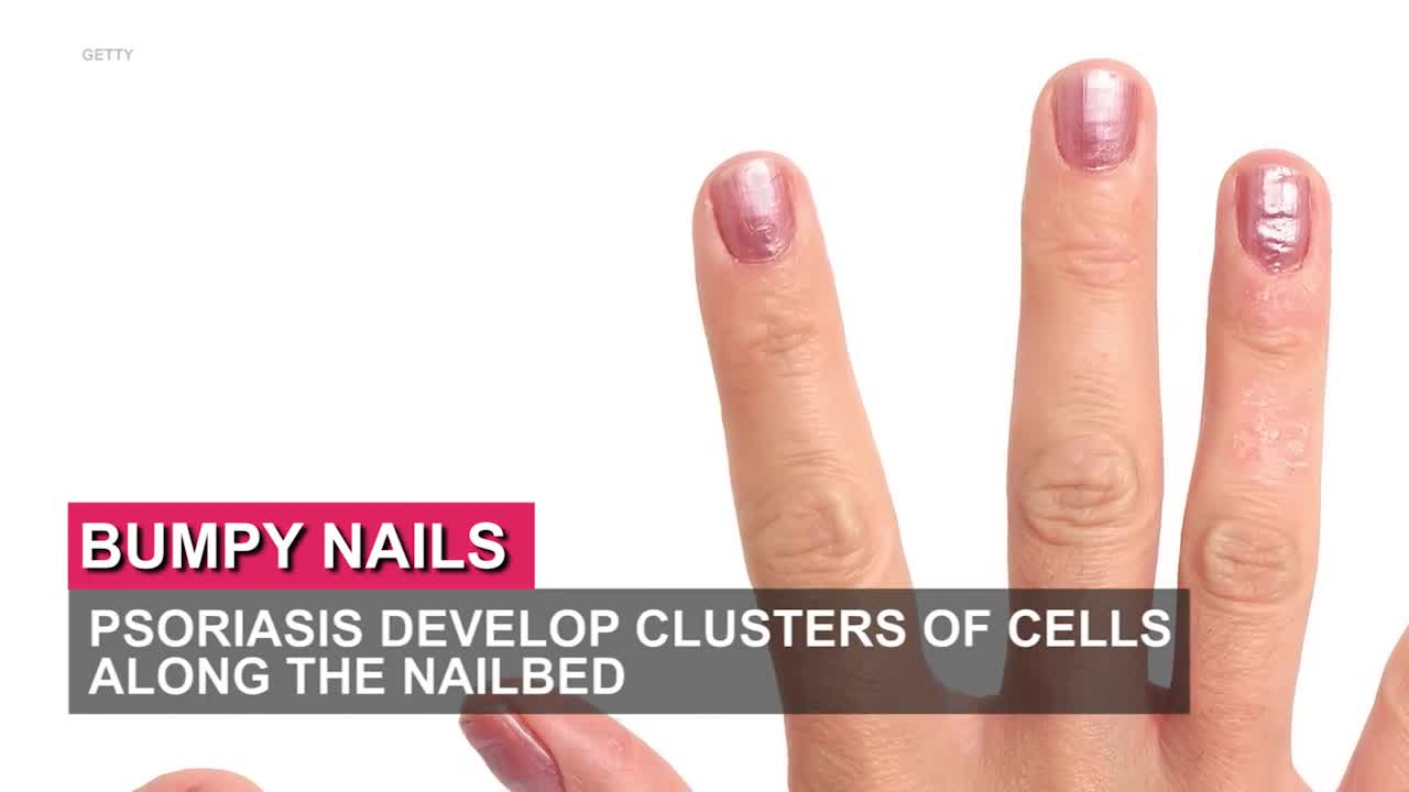 6 things your nails could tell you about your health